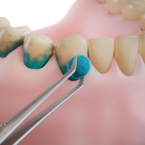 professional teeth cleaning/ step 1: staining dental plaque