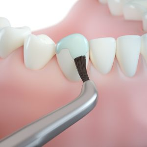 professional teeth cleaning/ step 6: fluoride varnish