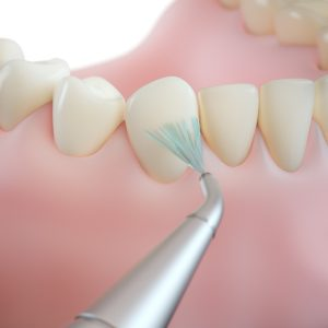 professional teeth cleaning/ step 4: air and water polishing