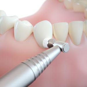 professional teeth cleaning/ step 5: polishing