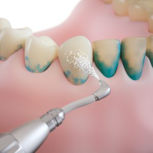 professional teeth cleaning/ step 2: powder stream treatment