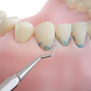 professional teeth cleaning/ step 3: scaling